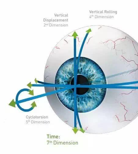 德国阿玛仕1050Rs千频Smart全激光设备落户兰州普瑞眼视光医院